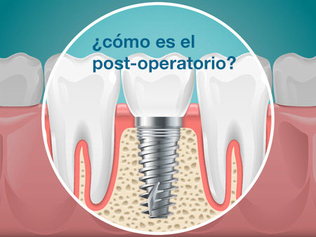 mejores implantes dentales tarragona