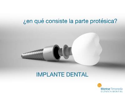 Implantes dentales | en que consiste la parte protésica