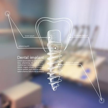 los mejores implantes dentales de tarragona