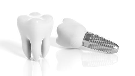 que son los implantes dentales  Tarragona
