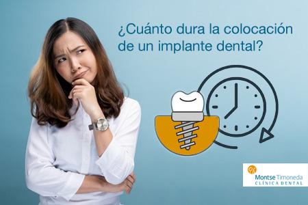 implantes dentales | tiempo de colocación