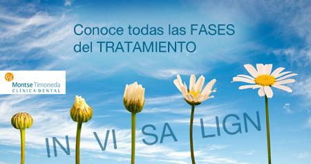 invisalign en Tarragona | todas las fases del tratamiento