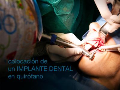 implante dental de carga inmediata