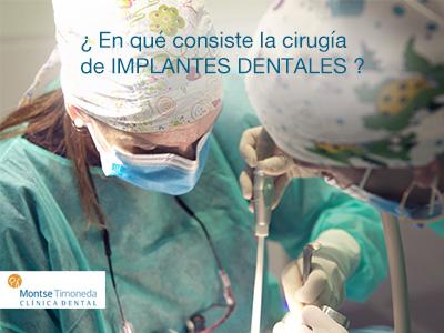 implantes dentales | en que consiste la cirugia