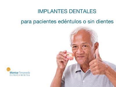 implantes dentales para pacientes sin dientes