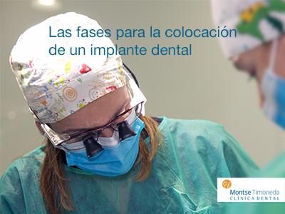 las fases de colocacion de un implante dental en tarragona