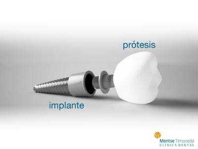 protesis/implante
