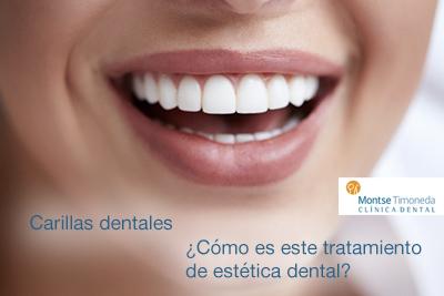 carillas dentales   el tratamiento
