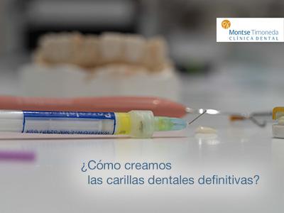 carillas dentales en tarragona | cómo creamos las carillas definitivas