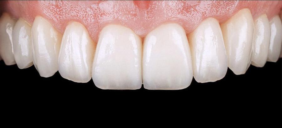 carillas dentales_caso 4_despues