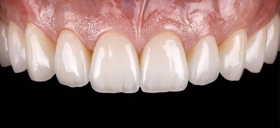 carillas dentales_caso_5 _despues