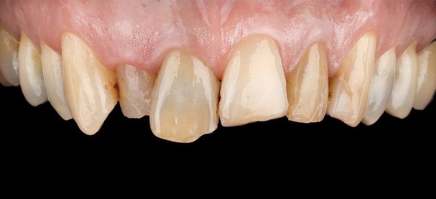 carillas dentales_caso_6_antes