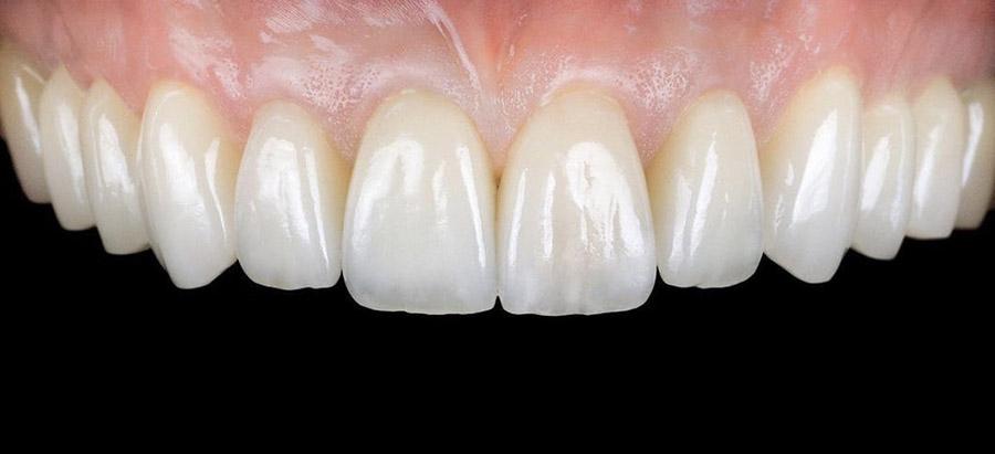 carillas dentales_caso_6_despues