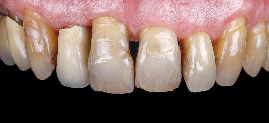 carillas dentales_caso_7_antes