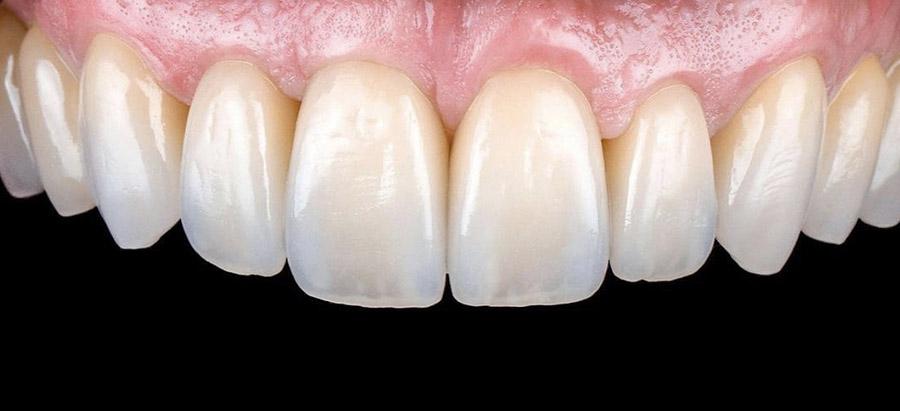 carillas dentales_caso_7_despues