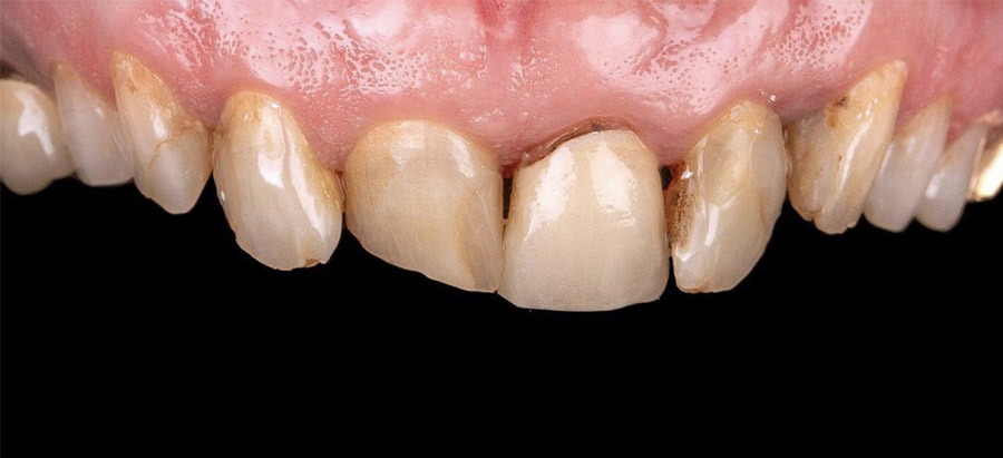 caso carillas dentales 4_antes