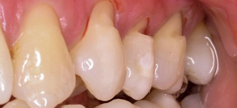 odontologia conservadora caso 1_antes