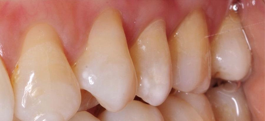 odontologia conservadora caso 1_despues