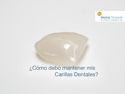 carillas dentales | el mantenimiento